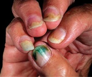Pseudomonas can affect the fingers, too.