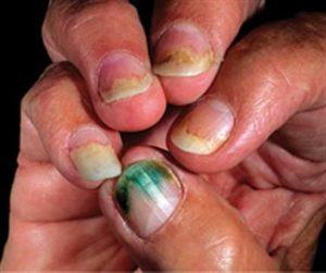 unhealthy fingernails